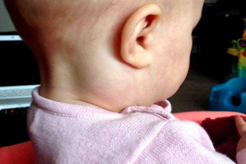 Лимфоузлы на затылке: причины воспаления, лечение, фото