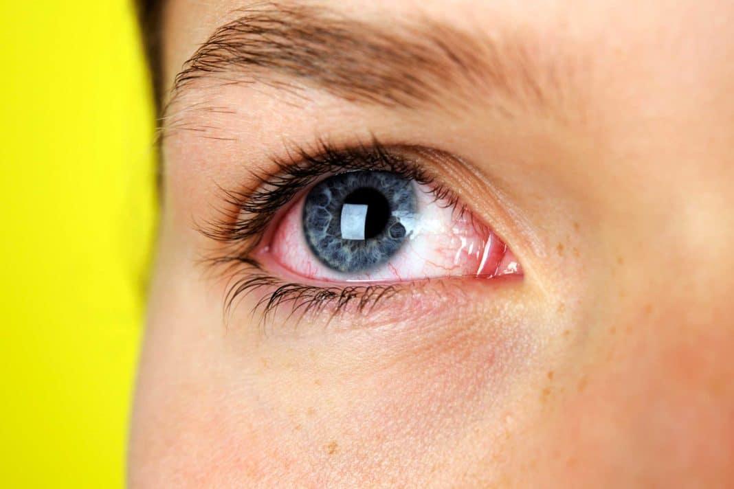 У ребенка гноятся глазки: пошаговая инструкция что делать и чем лечить болезнь глаз