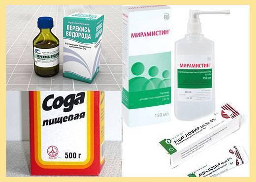 Лечение детского стоматита в домашних условиях: как лечить натуральными и медикаментозными средствами