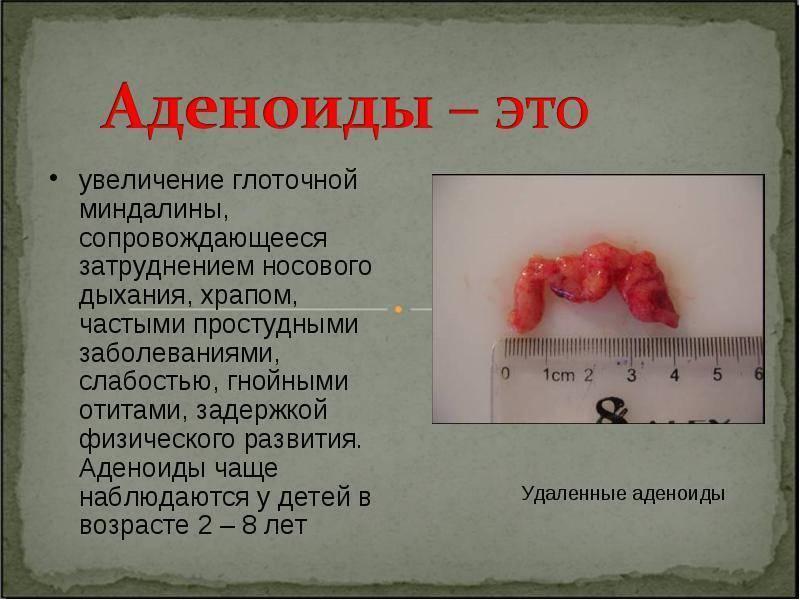 Удаление аденоидов у детей - отзывы: операция по удаление лазером, последствия эндоскопической операции