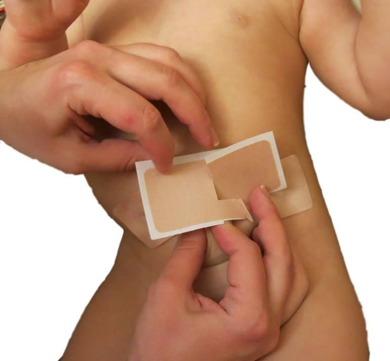 Пластырь для пупочной грыжи для новорожденных: как заклеить им новообразование у детей?