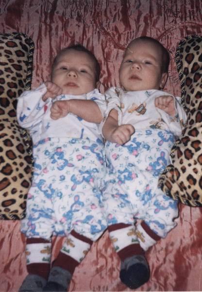 На каком сроке рождается двойня чаще всего?