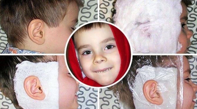Компресс на ухо ребенку: как сделать спиртовой согревающий и камфорный
