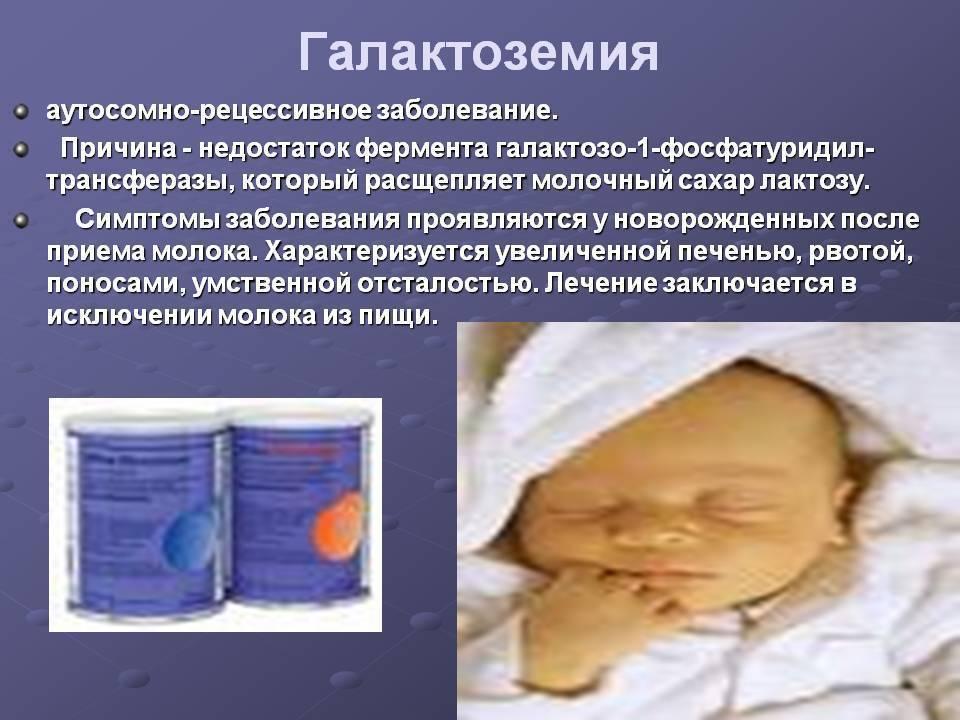 Галактоземия у новорожденных (15 фото): симптомы у детей – ключевые признаки и лечение, диспансеризация, анализы
