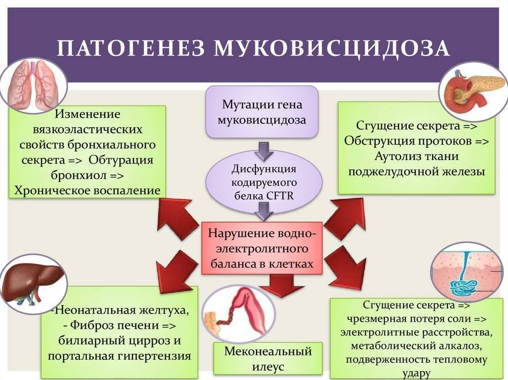 Муковисцидоз: симптомы, причины, лечение