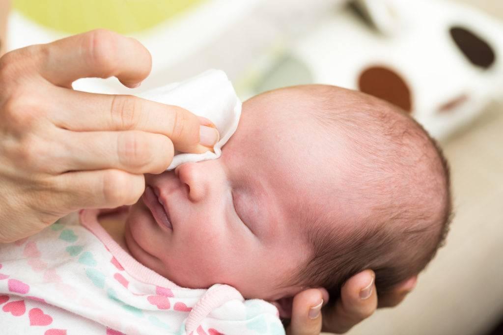 Гноится глаз у новорожденного: оказание первой помощи, рекомендации комаровского