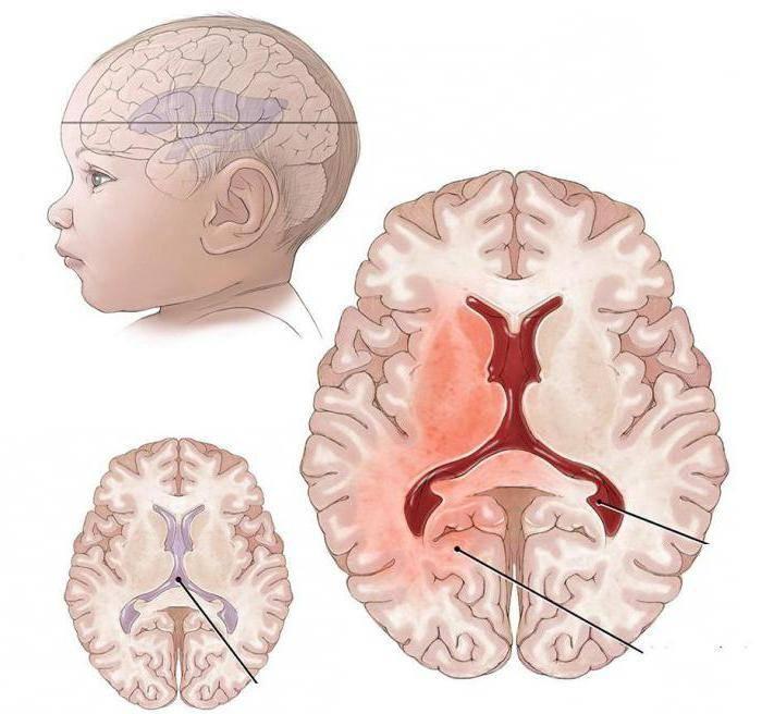 Недоразвитость головного мозга у новорожденных последствия и лечение - до родов