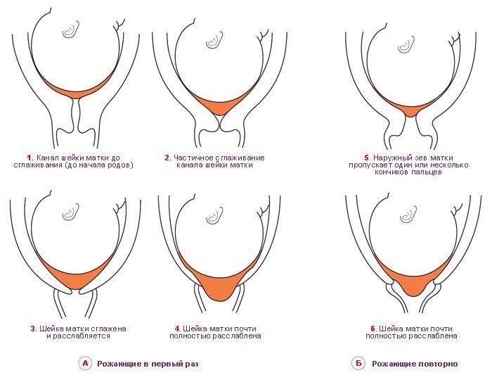 Короткая шейка матки при беременности - причины, чем опасна, лечение