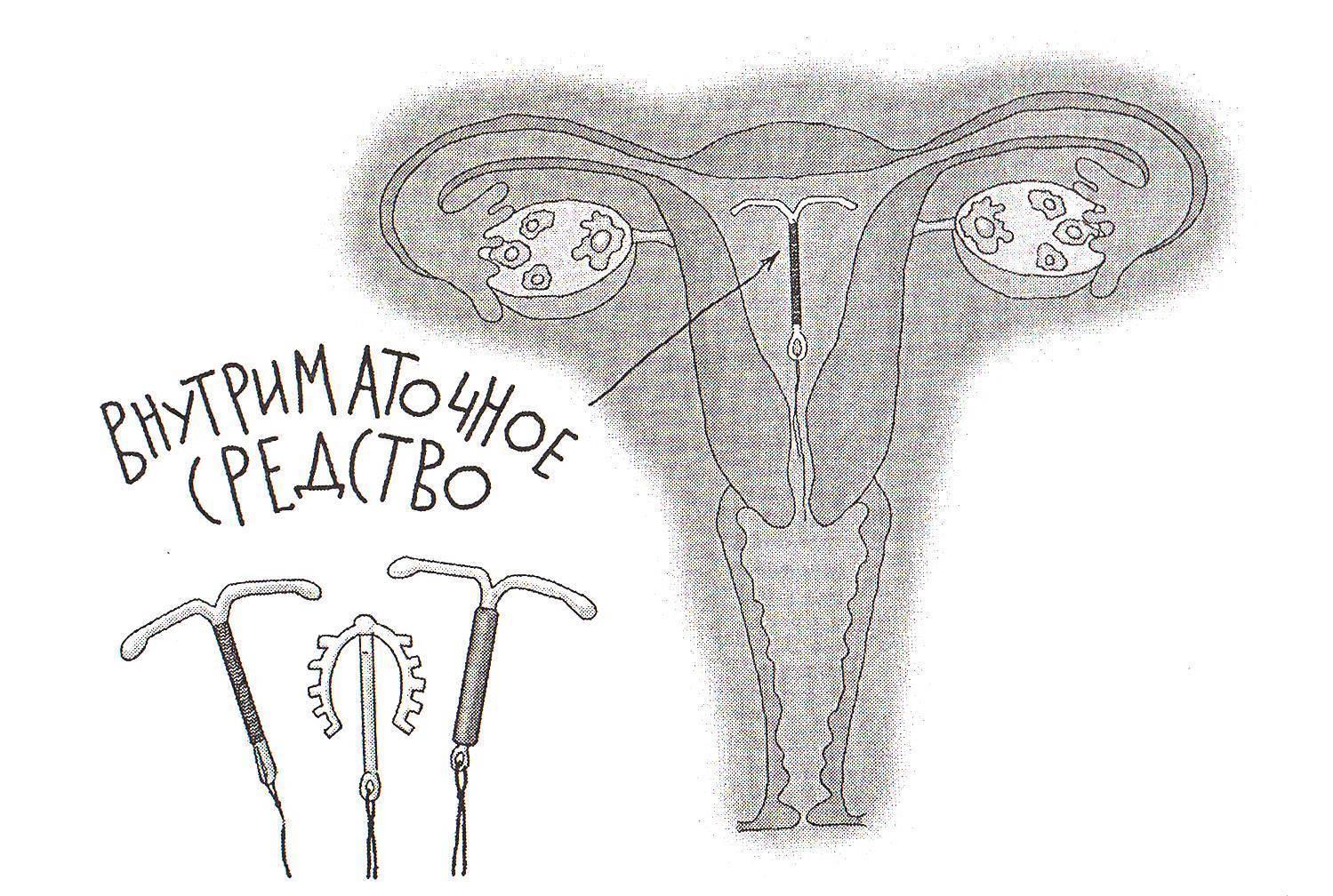 Можно ли забеременеть со спиралью: каковы признаки беременности, какими будут последствия?