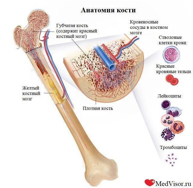 Острый лимфобластный лейкоз у детей: симптомы, лечение, прогноз на будущее