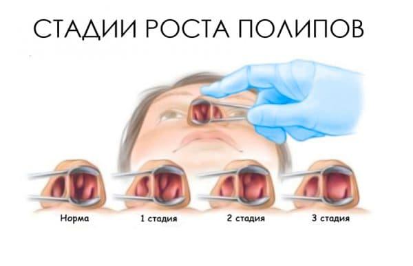 Полипы в носу у ребенка: фото наростов, симптомы, причины и лечение | заболевания | vpolozhenii.com