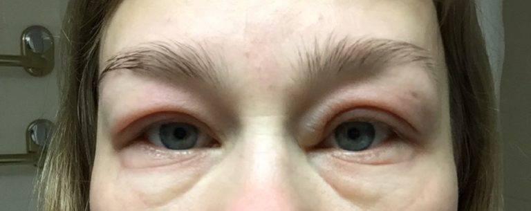 Отеки под глазами: причины их появления и опасны ли они для здоровья?