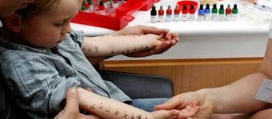 Пробы на аллергию: скарификационные, кожные, показания и противопоказания