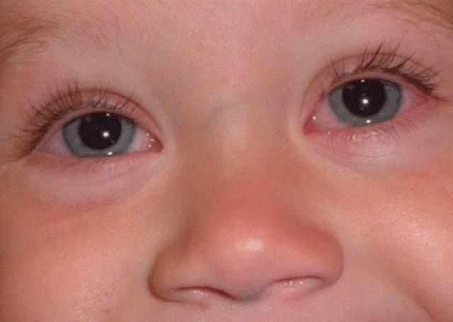 Особенности аллергического конъюнктивита у ребенка