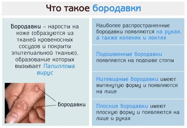 Бородавки на руках причины и лечение в домашних условиях у ребенка