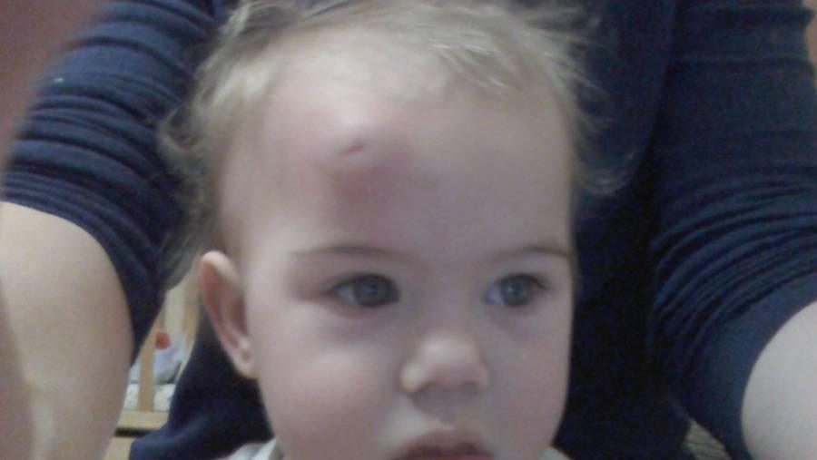 Ребенок ударился лбом об угол. как быстро вылечить шишку на лбу от удара