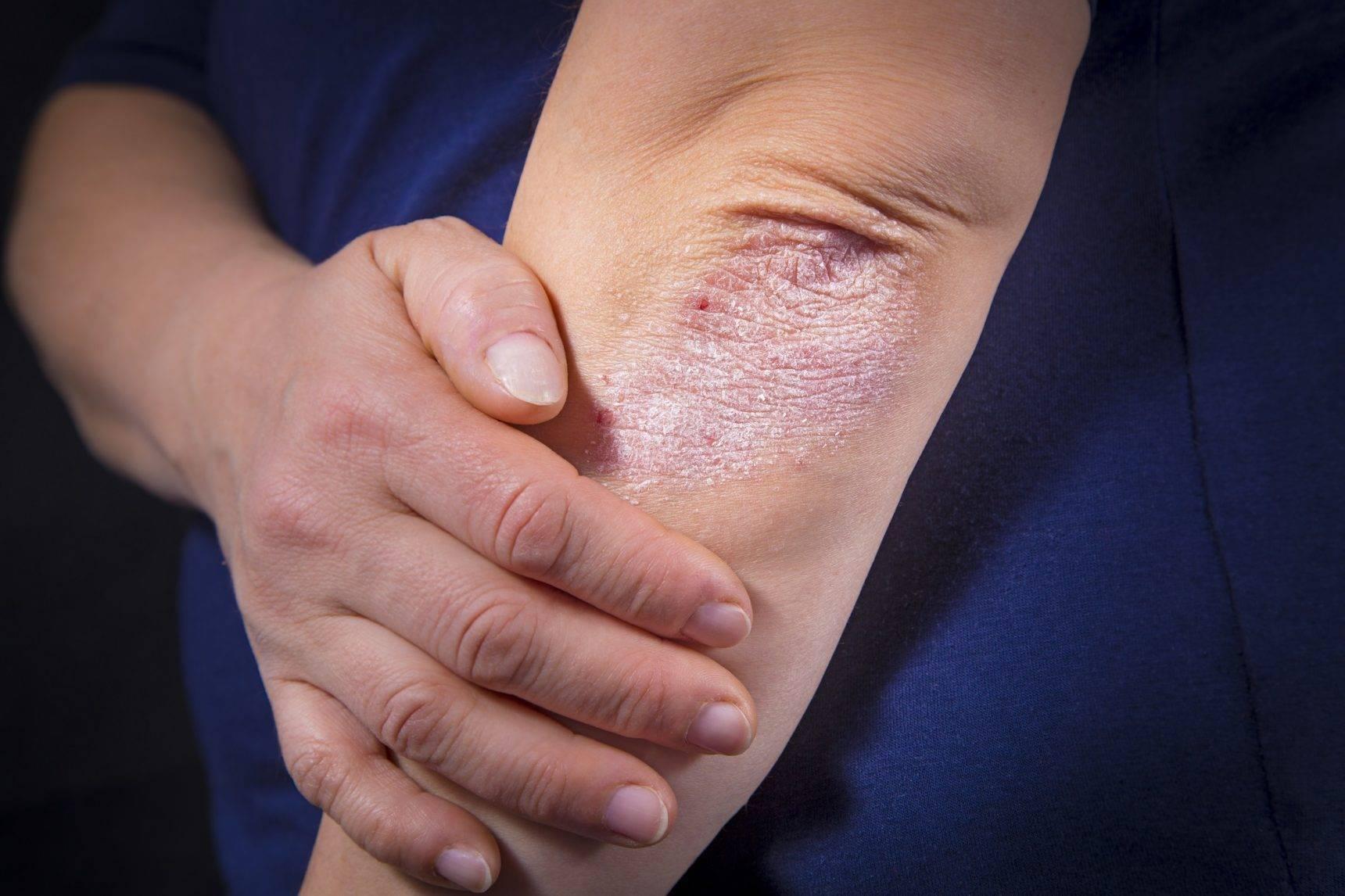 Псориаз у детей — начальные стадии, признаки развития, симптомы и варианты лечения. 110 фото и меры профилактики