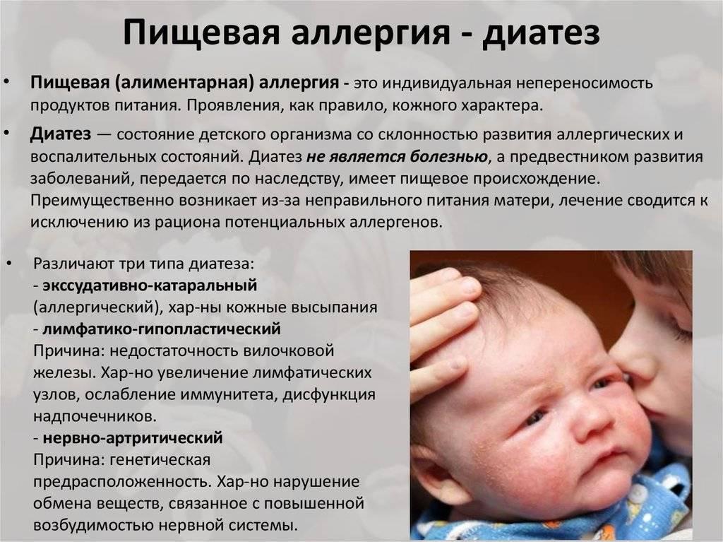 Диатез у новорожденных и грудничков: как выглядит, причины и лечение, мази
