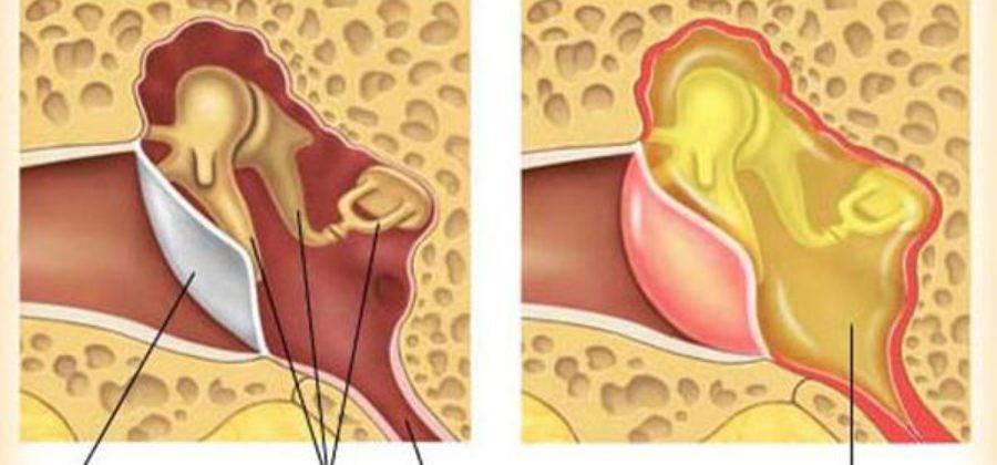 Двусторонний тубоотит: причины и симптомы болезни, диагностика и лечение