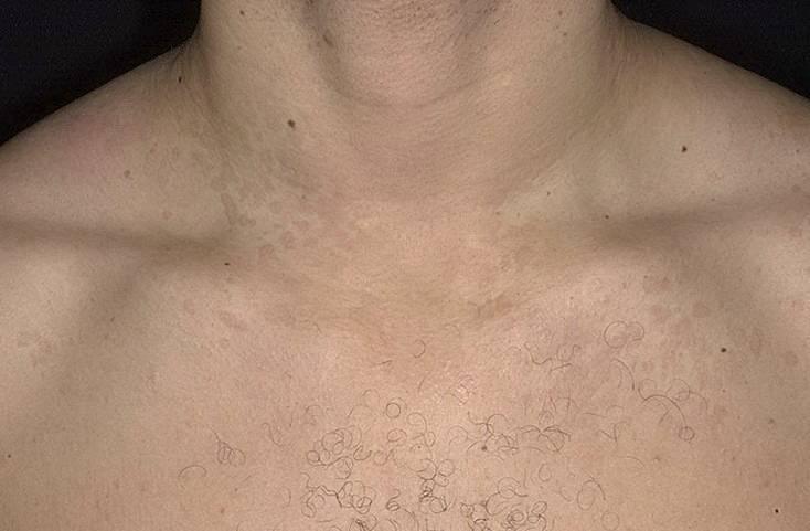 Отрубевидный лишай у человека: симптомы, признаки, как выглядит на теле у людей (фото)