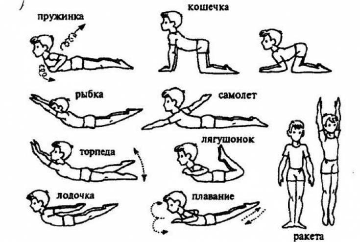 Лечебная зарядка от сколиоза детей и взрослых: комплекс упражнений с видео