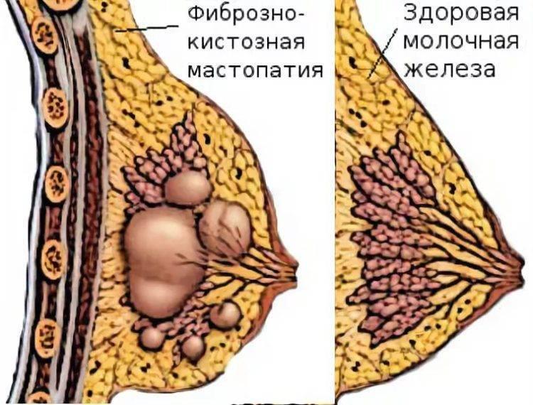 Покалывание в груди при гв: возможные причины, когда стоит обратиться к врачу