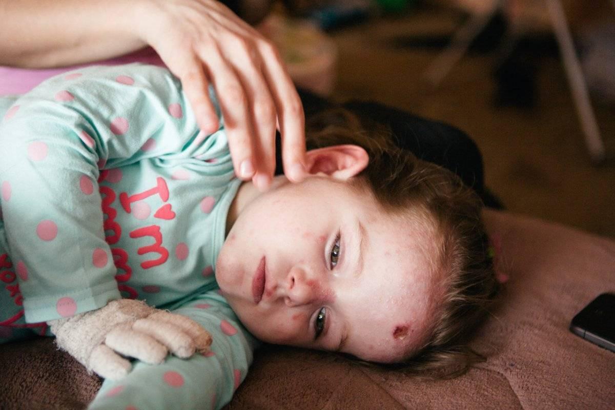 Буллезный эпидермолиз: формы и лечение. «дети-бабочки»: что нужно знать о буллёзном эпидермолизе