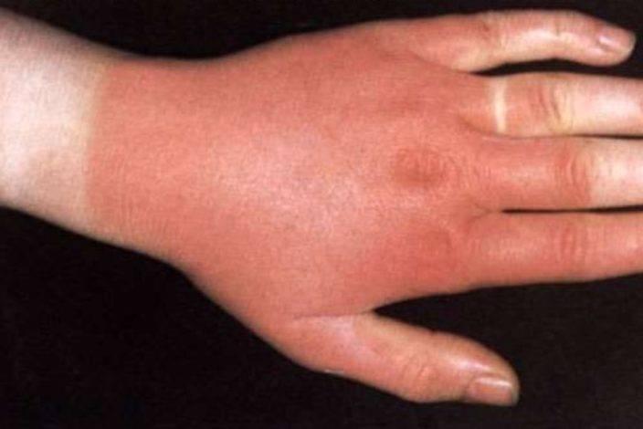 Инфекционная эритема у детей: фото, симптомы и лечение