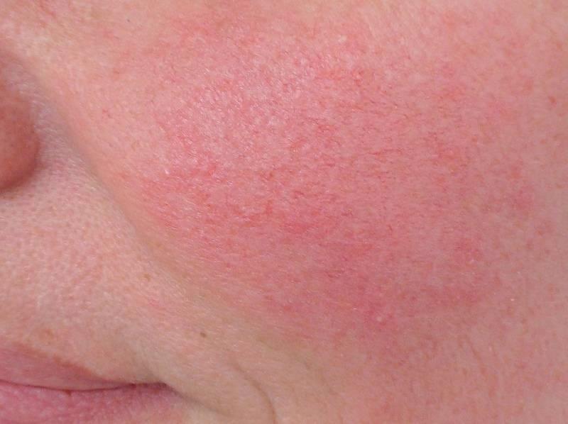 Шелушится кожа на лице и сохнет: что делать, если очень сухая и обезвоженная кожа лица, как избавиться от шелушения, диагностика, маски для сухой кожи лица