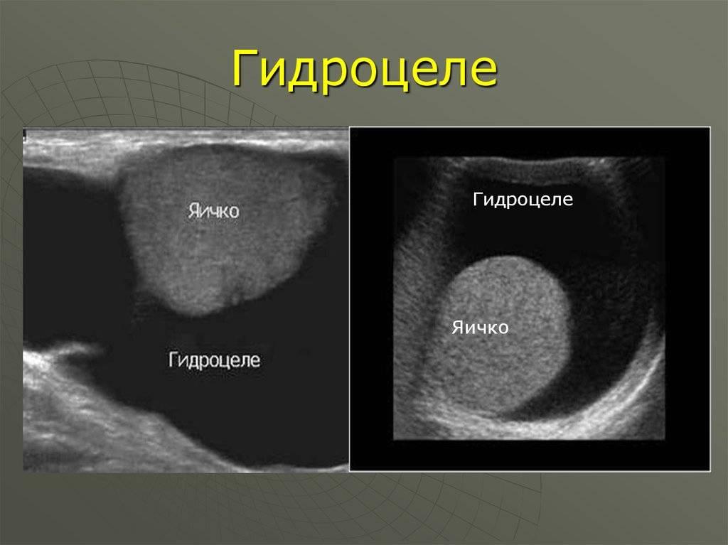 Водянка яичек у новорожденных: что это такое, причины у мальчиков-грудничков, лечение гидроцеле
