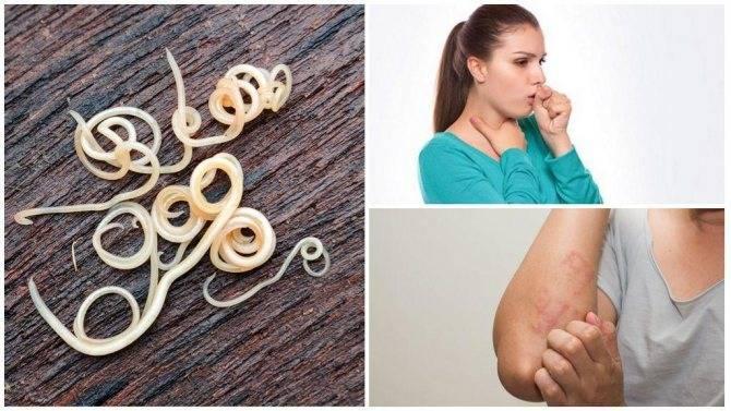 Кашель от глистов – причин, симптомы и лечение гельминтоза