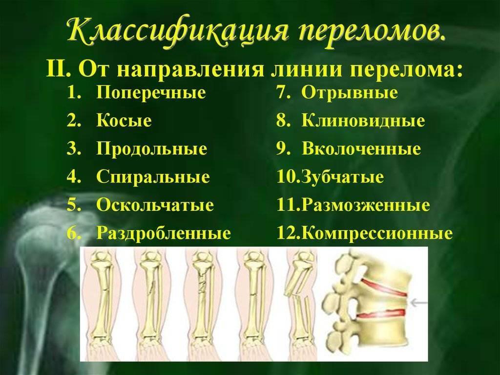 Переломы костей: виды, классификация (какие бывают), осложнения