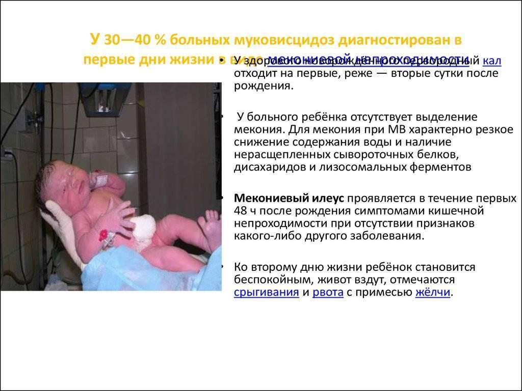 Муковисцидоз. причины, симптомы, диагностика и эффективное лечение :: polismed.com
