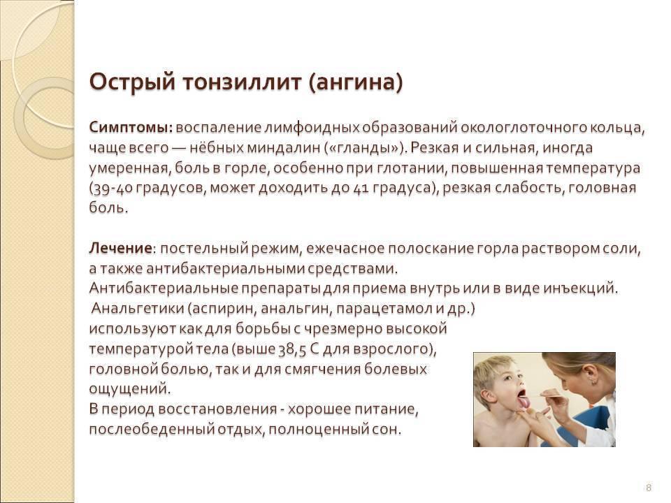Вирусная ангина у детей: симптомы с фото и лечение
