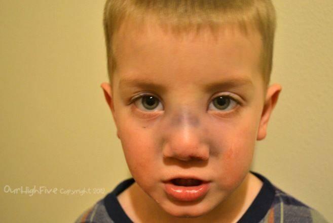 Перелом носа у ребенка: симптомы, признаки, как определить травму