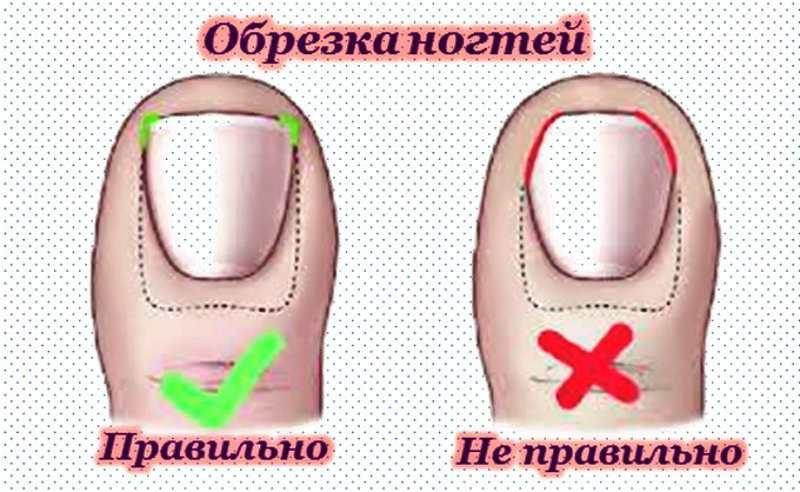 Уход за ногтями новорожденного