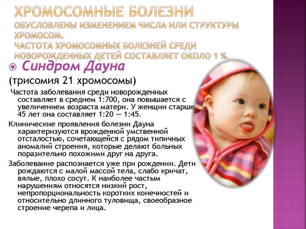 Симптомы синдрома дауна у новорожденных