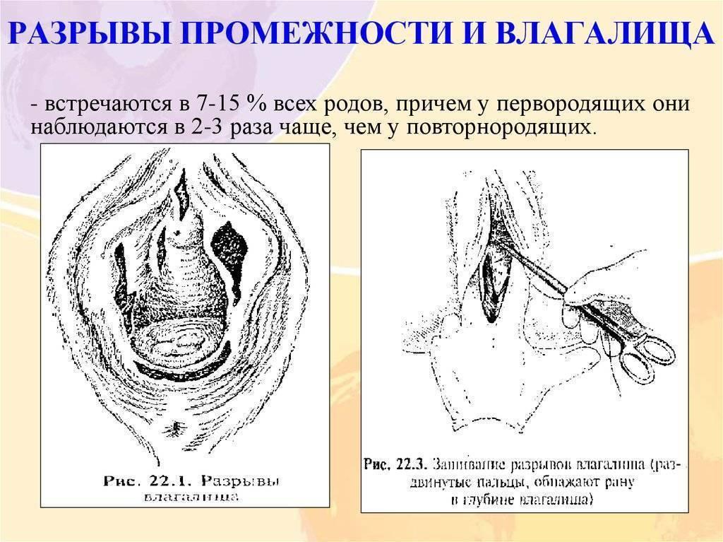 Как меняются женские половые органы после родов