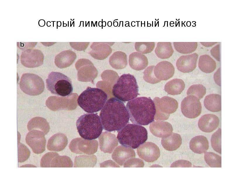 Острый лимфобластный лейкоз рецидив