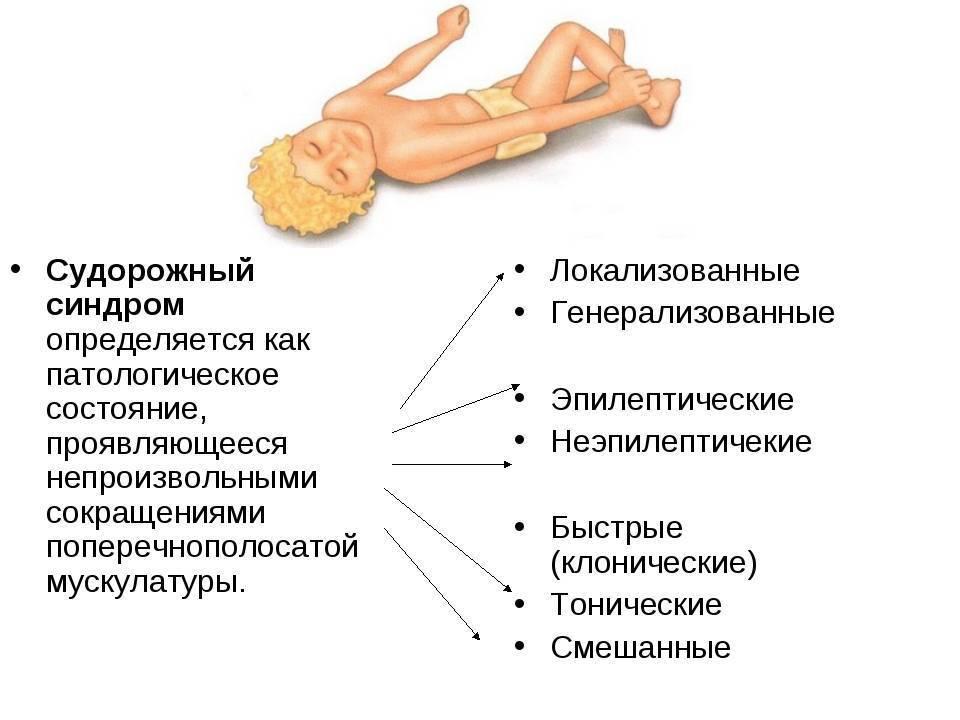 Судорожный синдром у детей: неотложная первая помощь, причины, лечение, симптомы, признаки