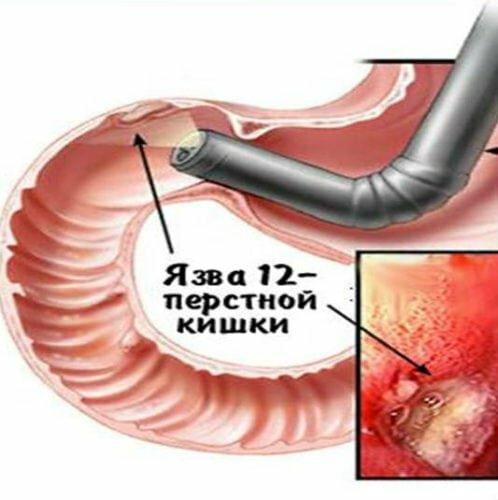 Язвенная болезнь желудка и 12-перстной кишки: причины, симптомы, диагностика и лечение в москве | фнкц фмба россии