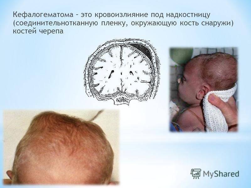Кефалогематома у новорожденных на голове - последствия