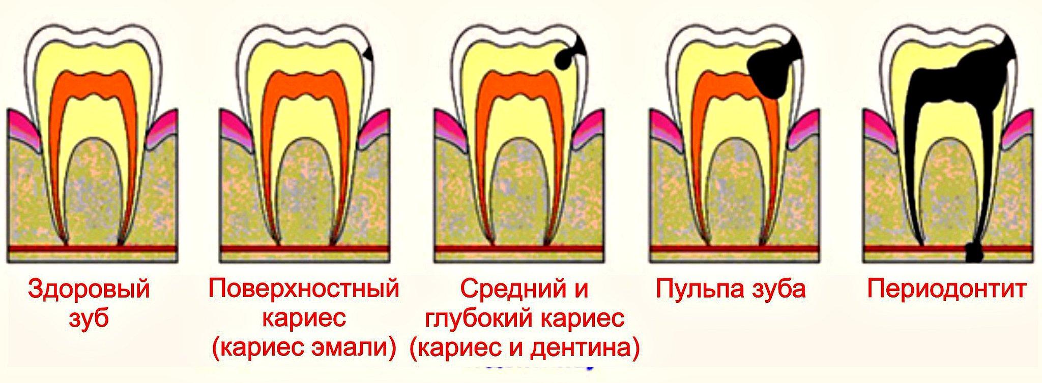 У ребенка флюс на молочном зубе — зубы