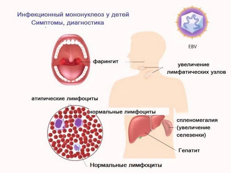 Вирус герпеса - симптомы, способы заражения и распространения