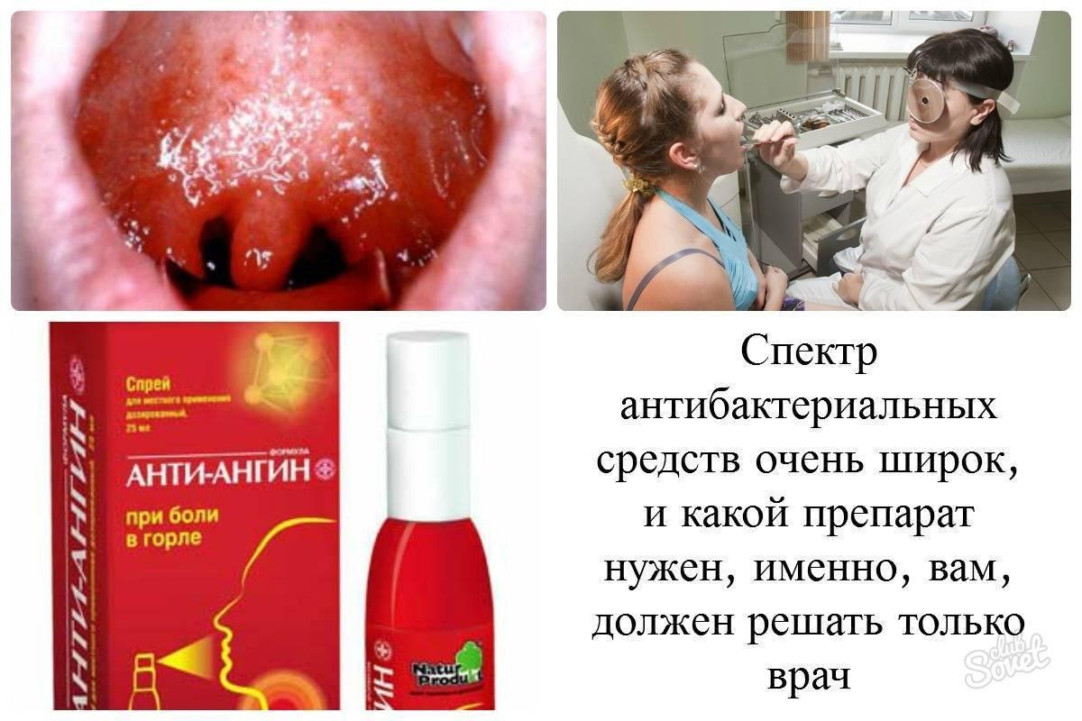 Фарингит у детей: симптомы, лечение, формы, осложнения, профилактика