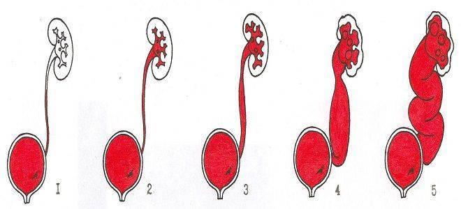 Пузырно-мочеточниковый рефлюкс у детей – симптомы, лечение, эндоскопическая коррекция пузырно мочеточникового рефлюкса у детей