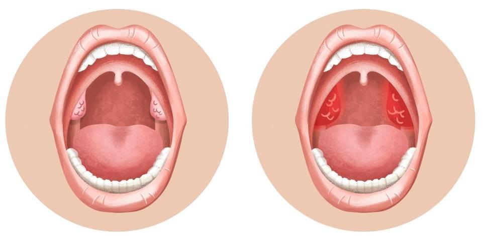 Катаральная ангина: симптомы и лечение, фото горла