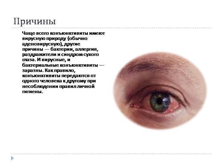 Вирусный конъюнктивит у детей: симптомы, сколько длится, лечение глаз