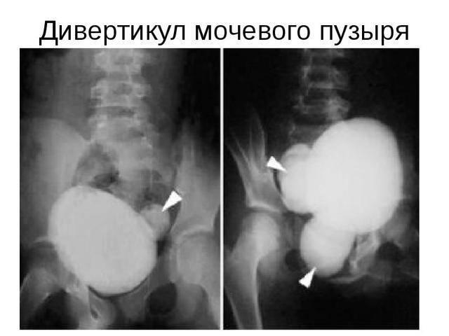 Разного размера почки у ребенка: причины, диагностирование с помощью узи