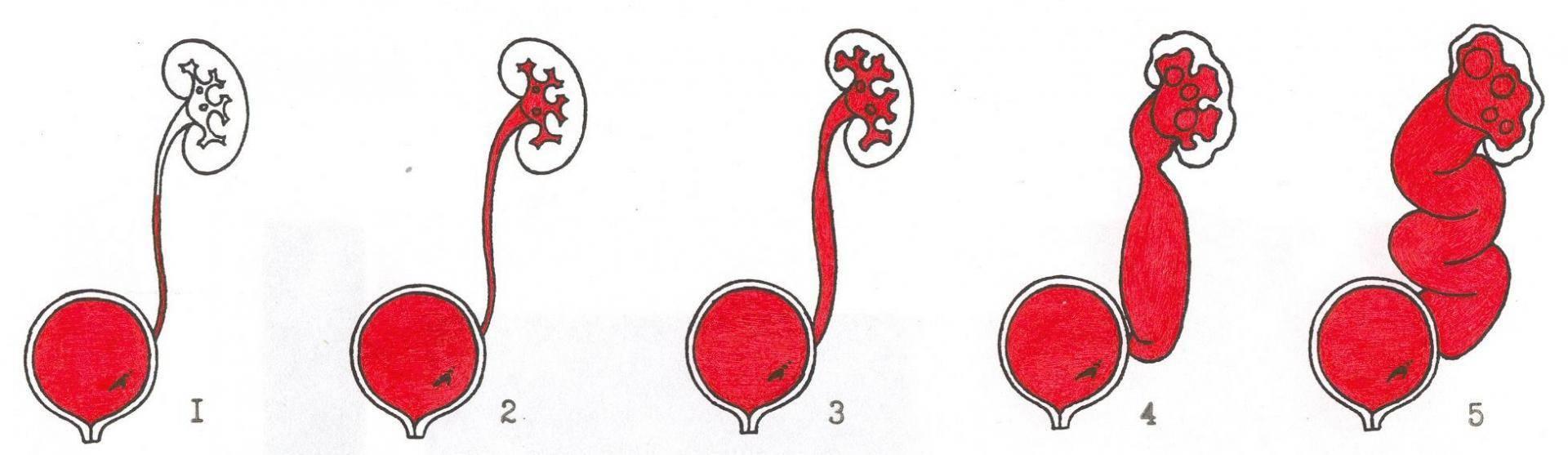 Пузырно-мочеточниковый рефлюкс у детей: симптомы и лечение